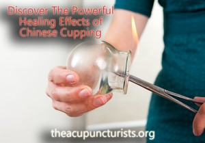 Chinese Cupping Therapy in South Florida