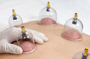 chinese cupping therapy south florida