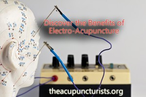 Electro Acupuncture in South Florida