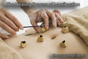 Moxibustion, Chinese Moxa, Mugwort - South Florida