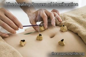 Moxibustion, Chinese Moxa, Mugwort - South Florida