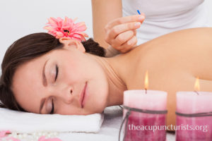 tui na massage and acupuncture in coral springs florida