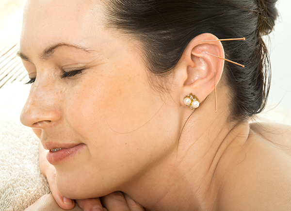 Ear Acupuncture - Margate, Coconut Creek, Coral Springs
