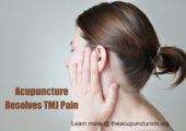 Acupuncture and Bell's Palsy