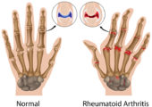 Chinese Herbs for Rheumatoid Arthritis