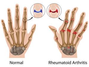 Chinese Herbs for Rheumatoid Arthritis in South Florida