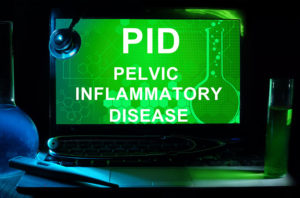 Acupuncture for PID - Pelvic Inflammatory Disease - in Coral Springs, Margate, Coconut Creek Florida