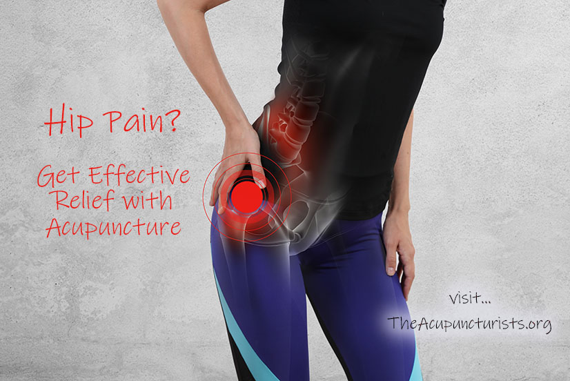 Acupuncture for Hip Pain in Coral Sorings, Margate and Coconut Creek Florida