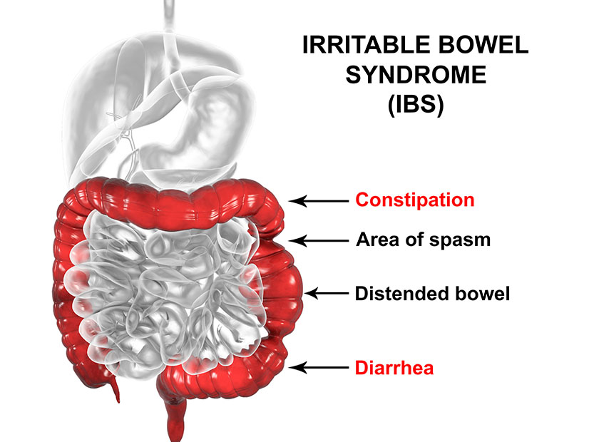 What is IBS, Irritable Bowel Syndrome - Margate, Florida