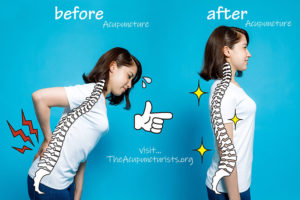 acupuncture for low back pain in coral springs and coconut creek Florida