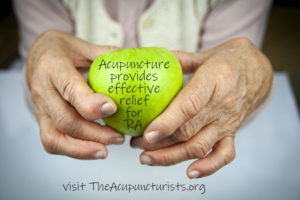 Acupuncture is an effective treatment for Rheumatoid Arthritis in Margate, Coral Springs and Coconut Creek